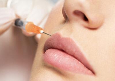Korekcja konturu ust